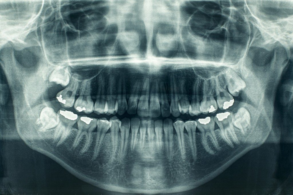 Panoramic extraoral dental x-ray