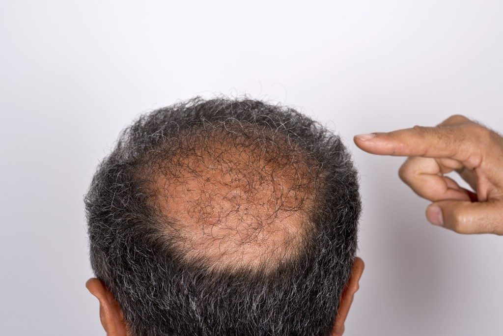 Man pointing to his balding head
