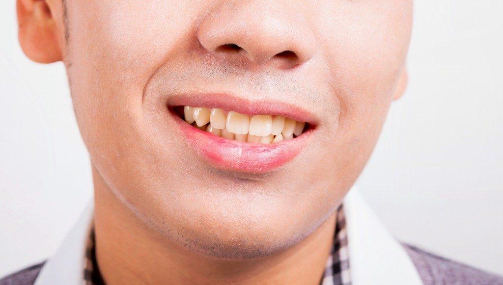 Set of yellow teeth