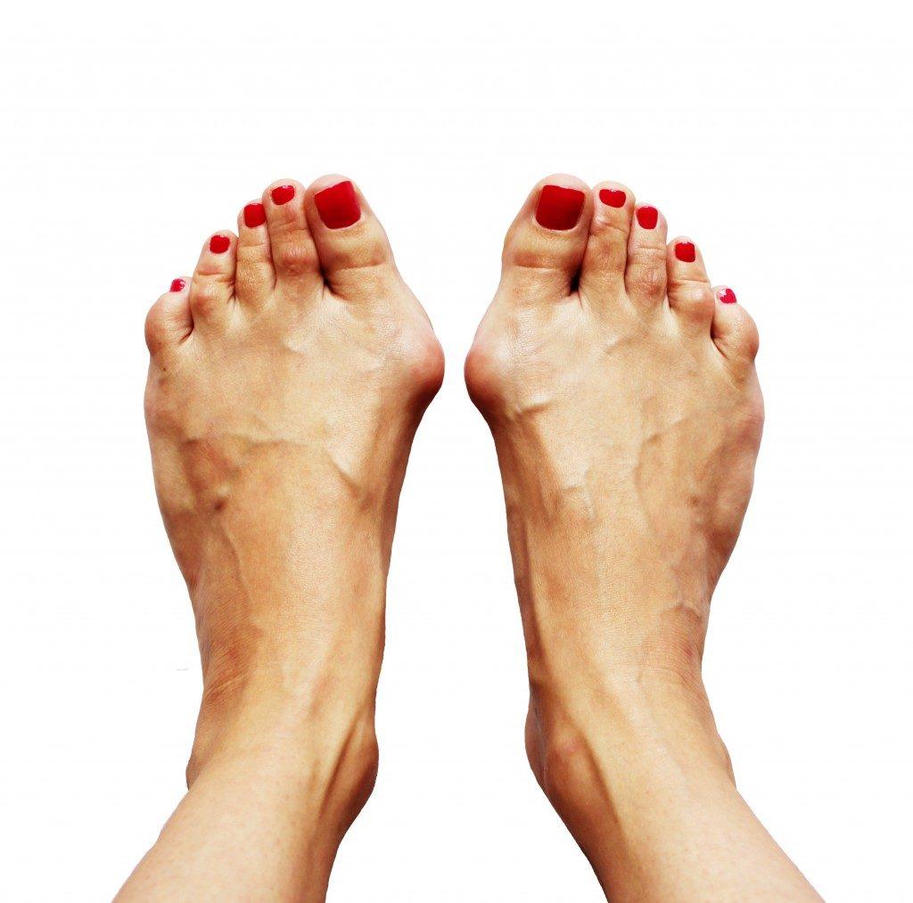 bunions after walk in high heels