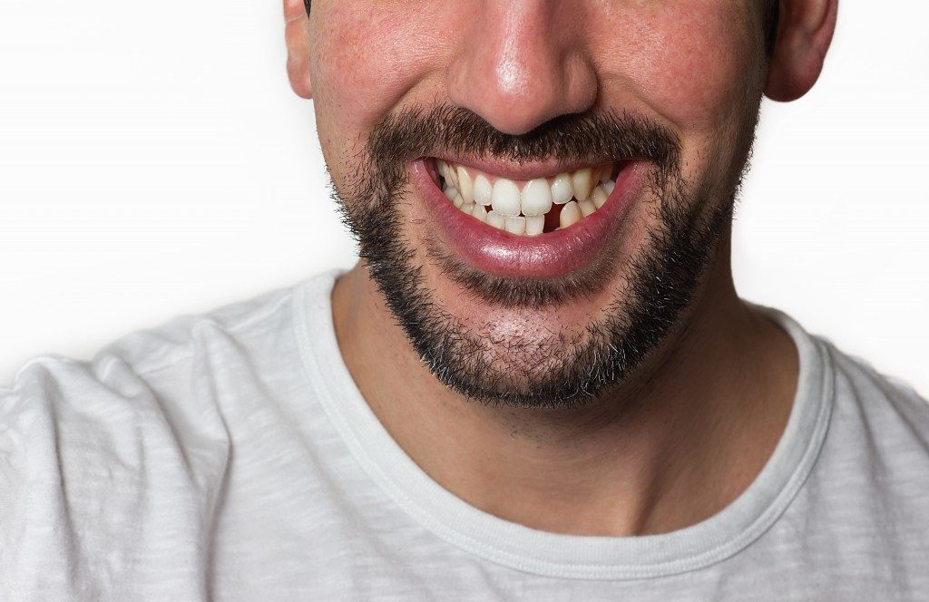 Close up on a man smiling while he is missing a tooth